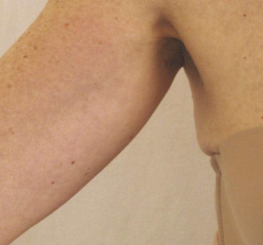 Skin Tightening Vancouver