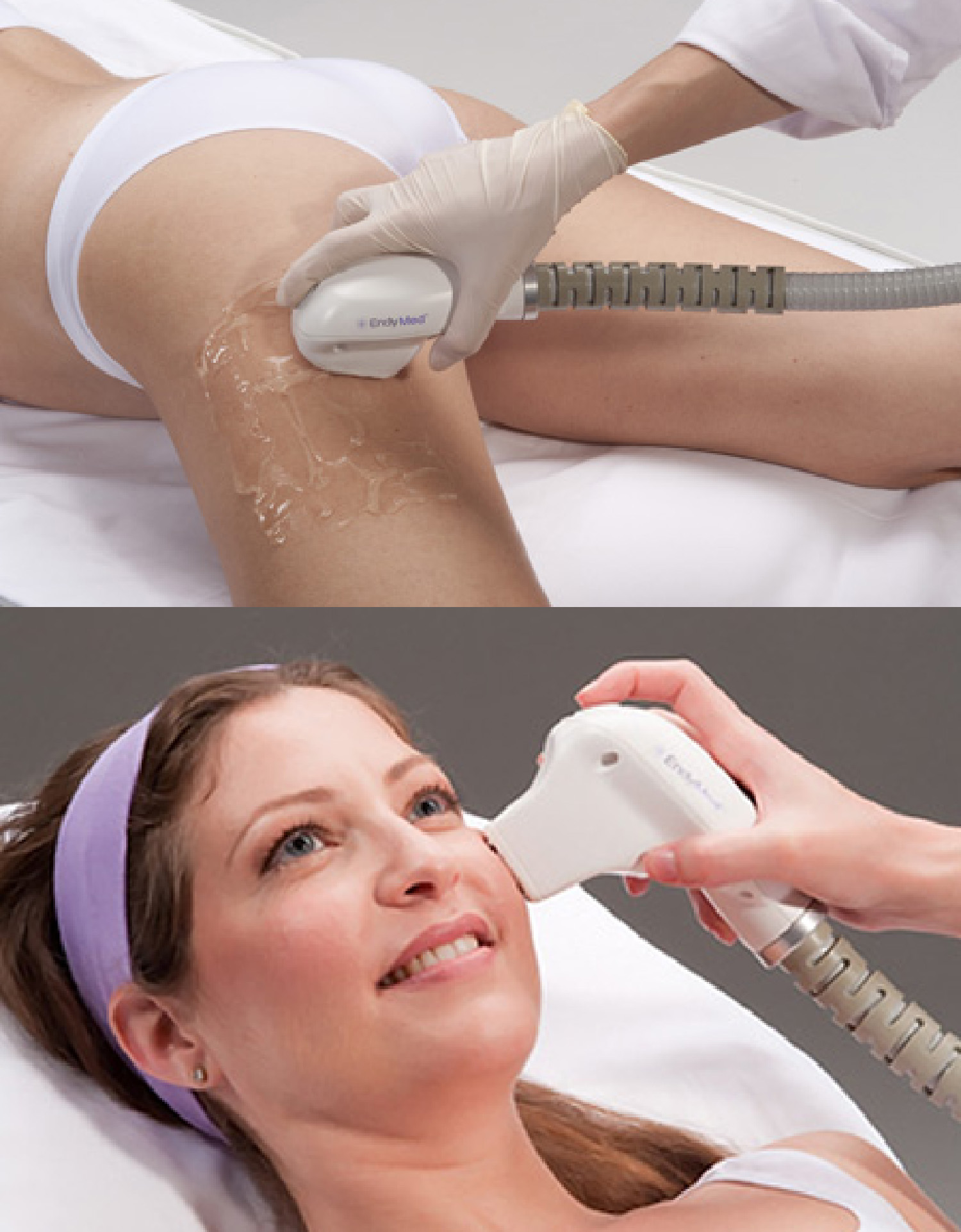 laser scar removal Vancouver