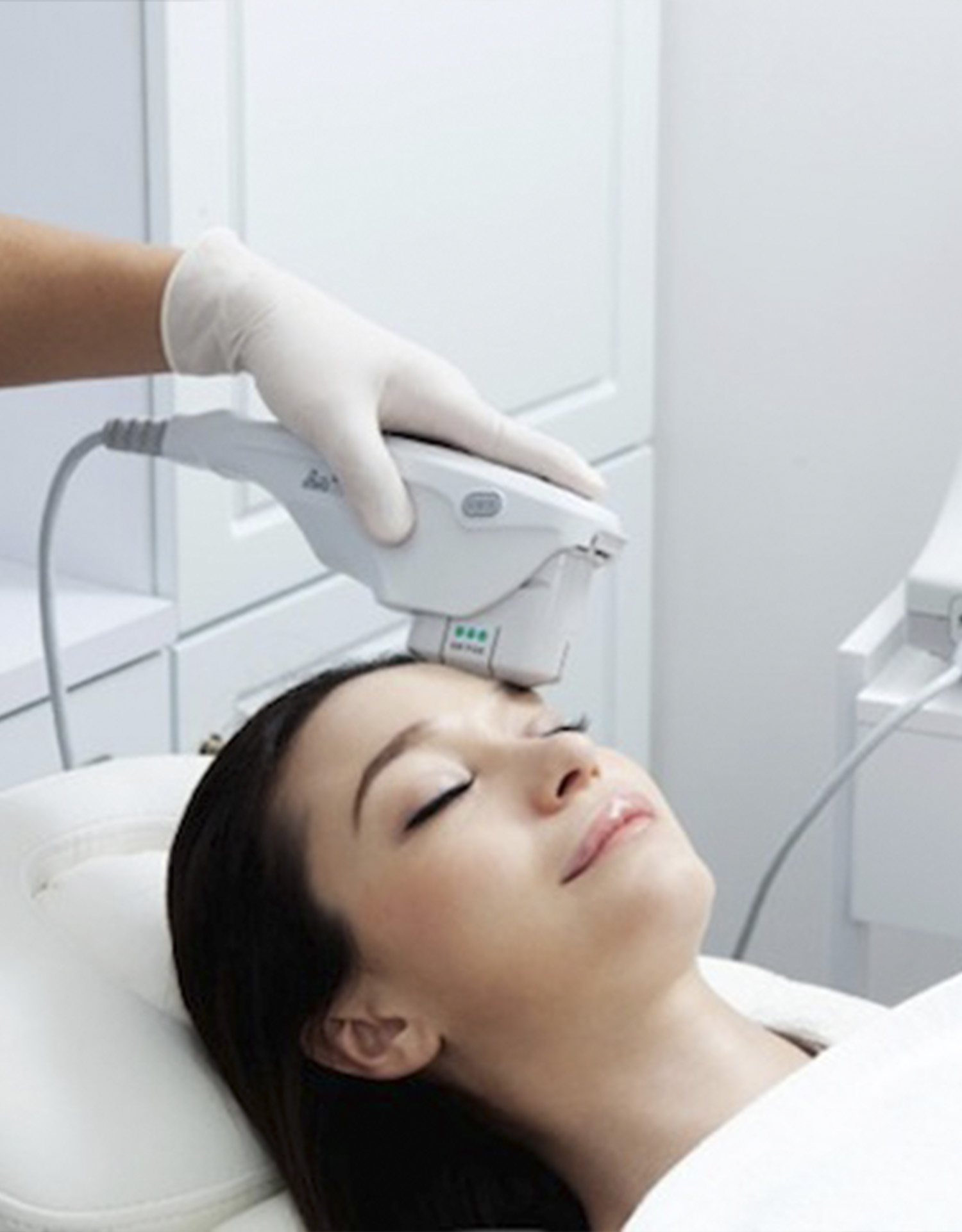 Ultherapy Vancouver