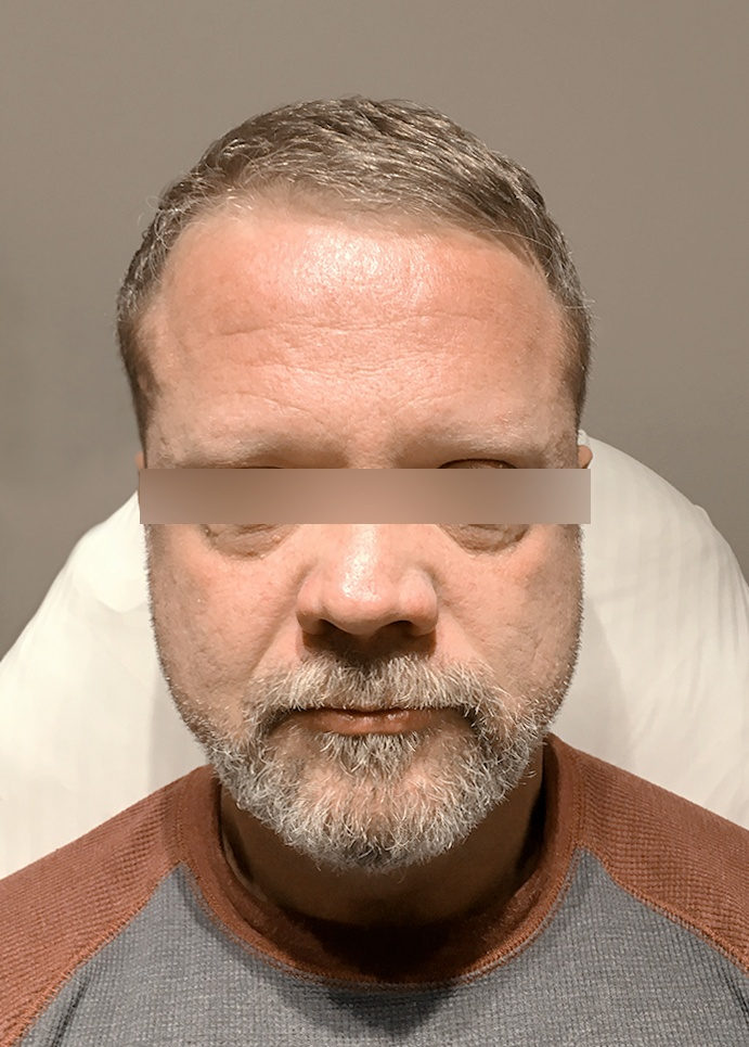 Frown Lines Treatment Vancouver