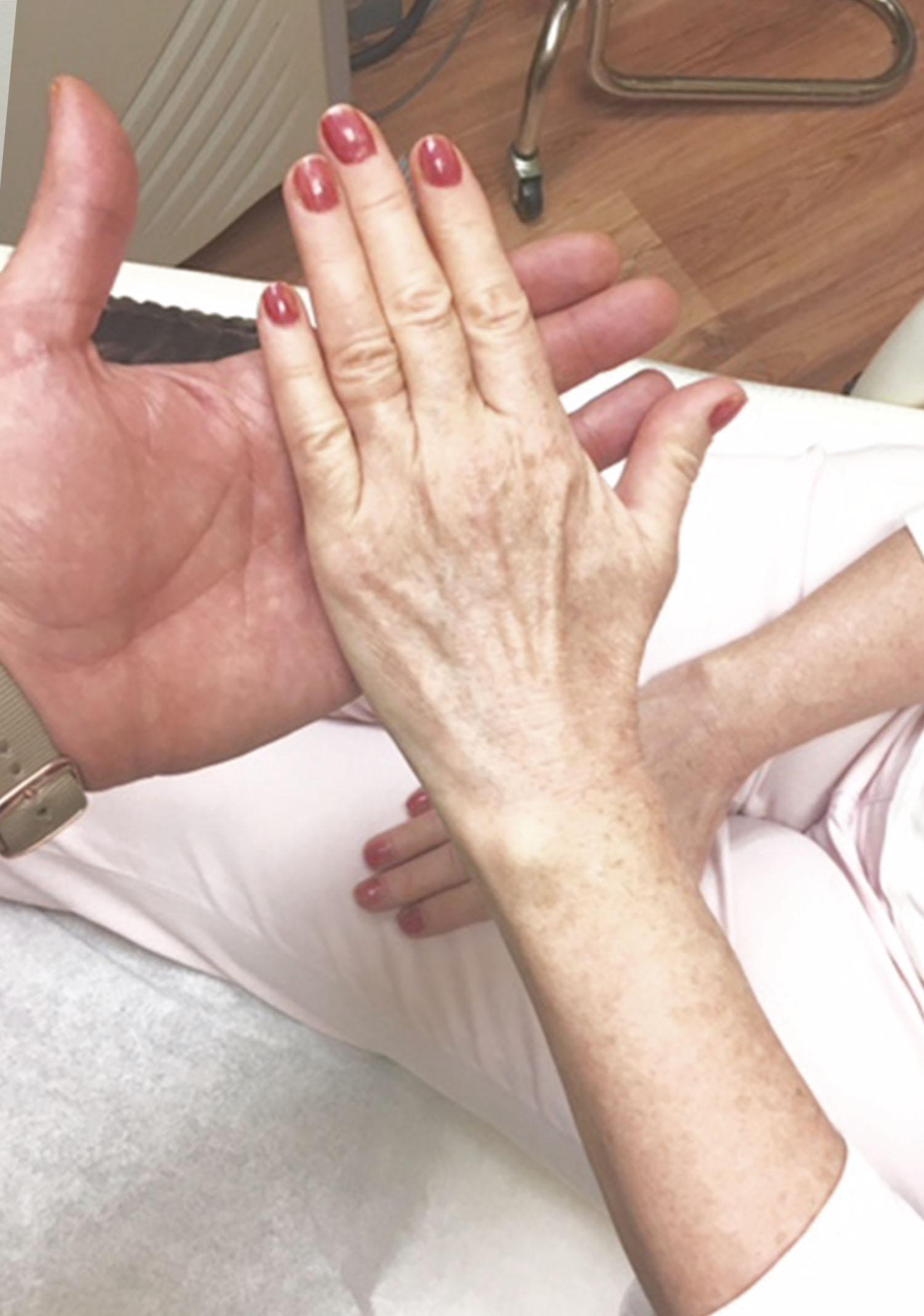 Hand Rejuvenation Vancouver