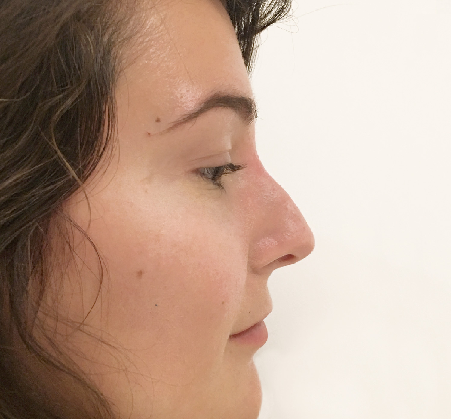 Non Surgical Nose Job Vancouver