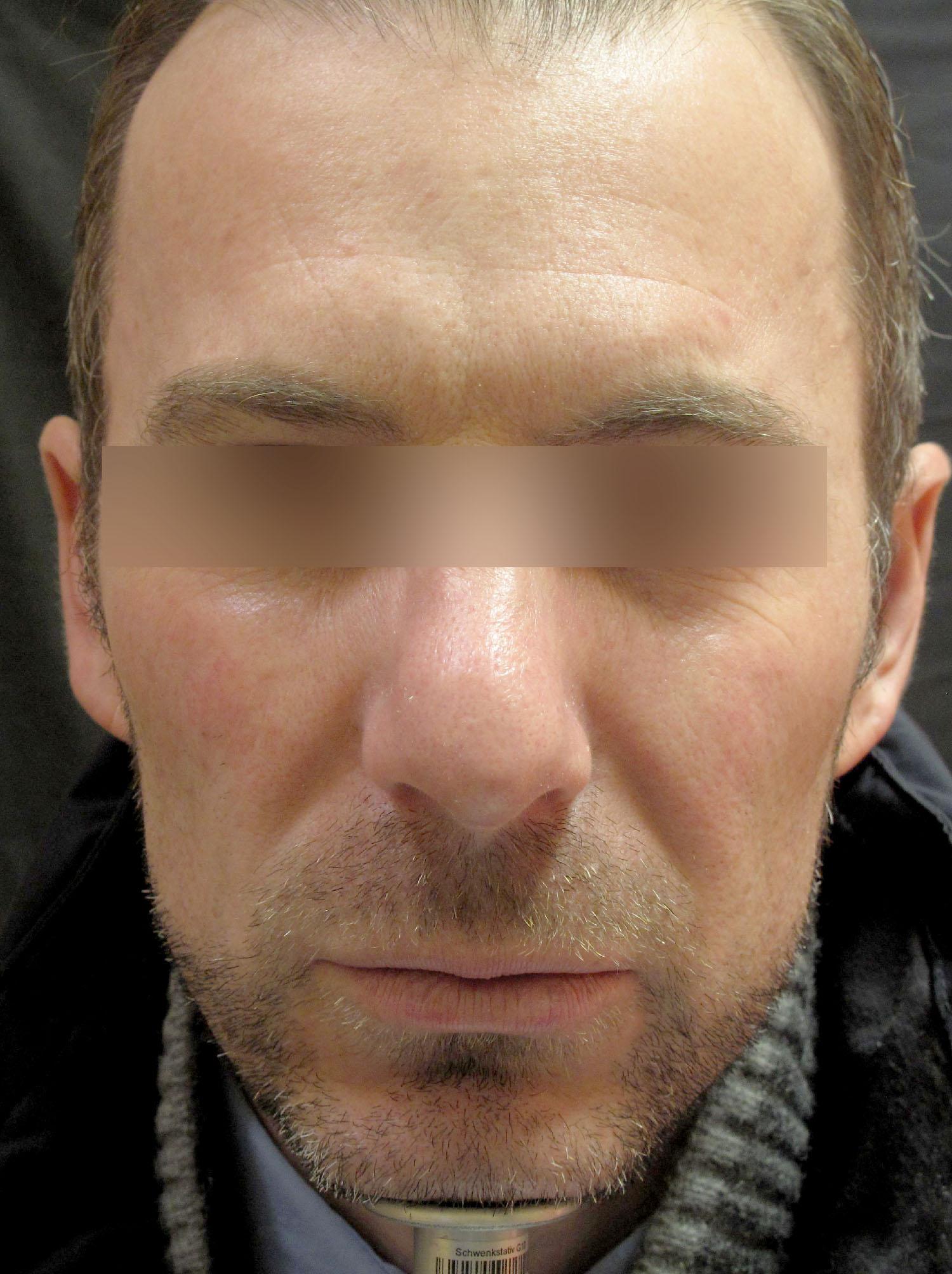 Botox And Filler Treatments For Men Skin Technique Dr