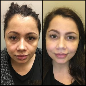 Facial Fillers Vancouver