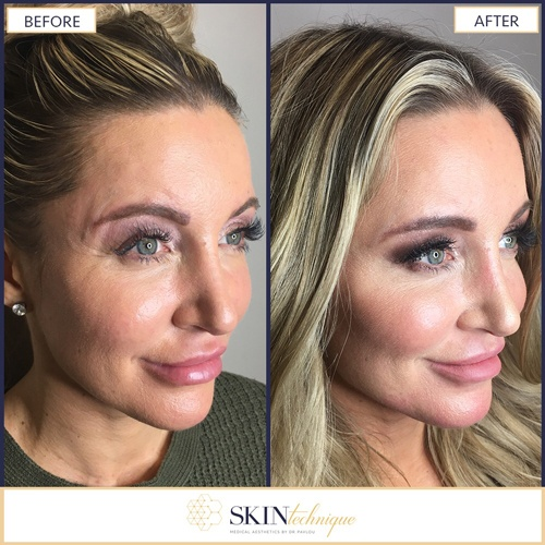 Cheek Lift by Dr. Pavlou