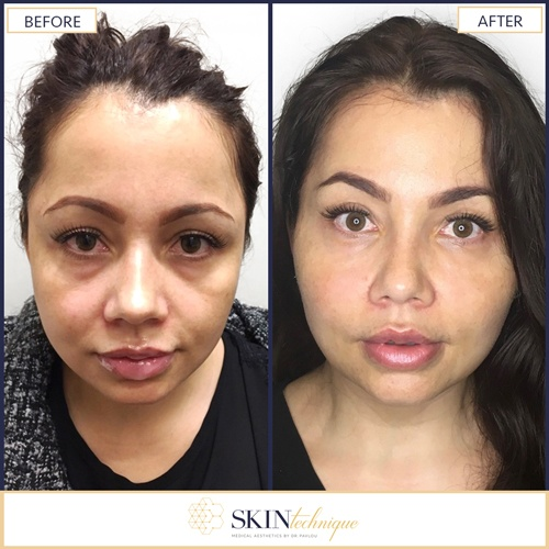 Soft lift procedure by Dr. Pavlou