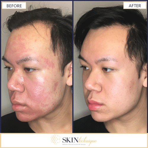 microneedling for acne vancouver