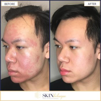 Acne Scar Treatment Vancouver Bc Laser Scar Removal Treatment Clinic