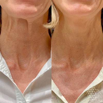 Neck Rejuventaion