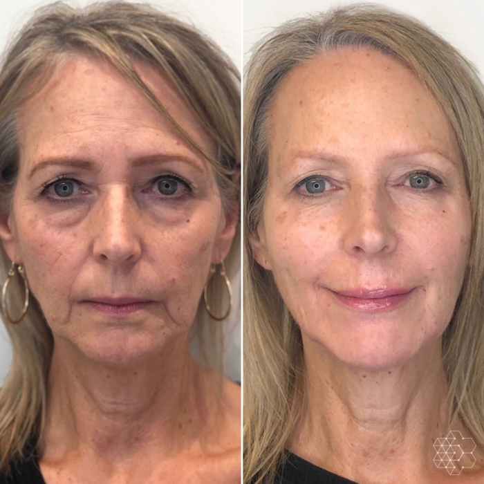 Liquid Face Lift Vancouver using strategic injections of botox and filler to restore a youthful appearance